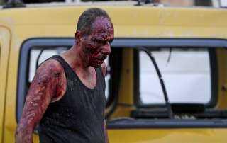 """الناجون من جهنم.. لبنانيون يروون لحظات تفجير """"بيروت """""""