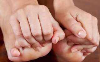 ما هى الروشتة العلاجية السليمة للتخلص من نوبات النقرس؟