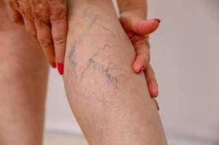 باجراءات بسيطة.. علاج دوالي الساقين