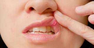 بدون أدوية.. وصفة سحرية لعلاج تقرحات الفم