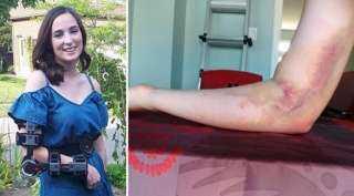 فتاة تبرعت بالدم فأصيبت بالشلل.. السبب خطأ ممرضة