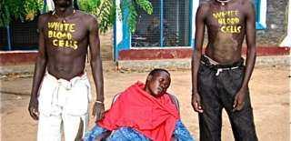 حقيقة إصابة 46 ألف سوداني بمرض الإيذر