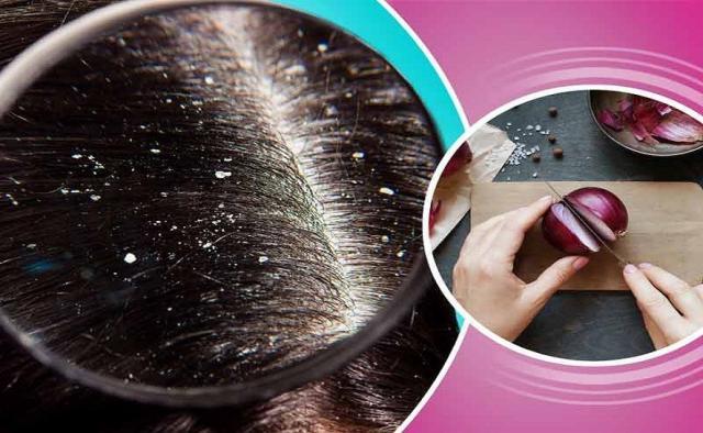 من أول مرة حل سحري ونهائي لعلاج قشرة الشعر الرأس اللاصقة صحة وجمال الموجز