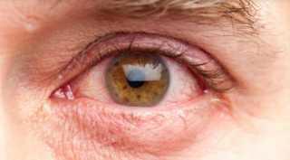 بدون أدوية.. روشتة سحرية طييعية لعلاج «عوامات العين»