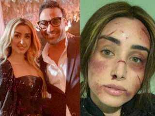 """عاجل.. معلومات خطيرة بشأن انفصال أحمد فهمي وهنا الزاهد بسبب """"علقة موت """""""