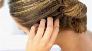 حيلة سحرية لعلاج حب شباب الرأس ثلاث مرات أسبوعيًا