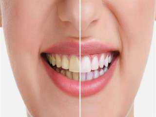 تخلصي من إصفرار الأسنان.. بهذه الطريقة السحرية
