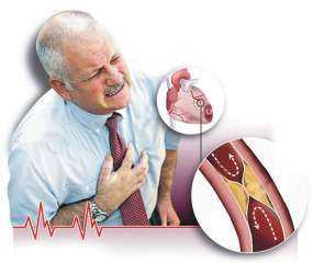 ماذا تعرفين عن أعراض تصلب الشرايين والعلامات الشائعة؟