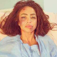 تطورات الحالة الصحية لـ دوللى شاهين بعد الاعتداء عليها بالضرب من قبل مجهولين